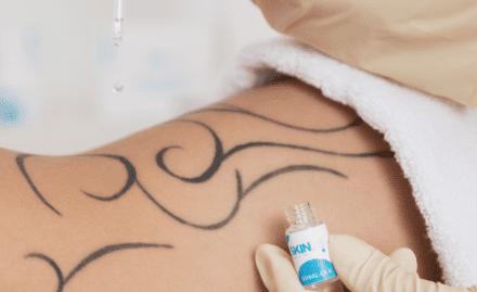 Tattoo entfernen Fade Ex
