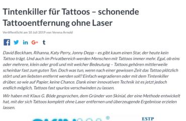 schonende Tattooentfernung ohne Laser
