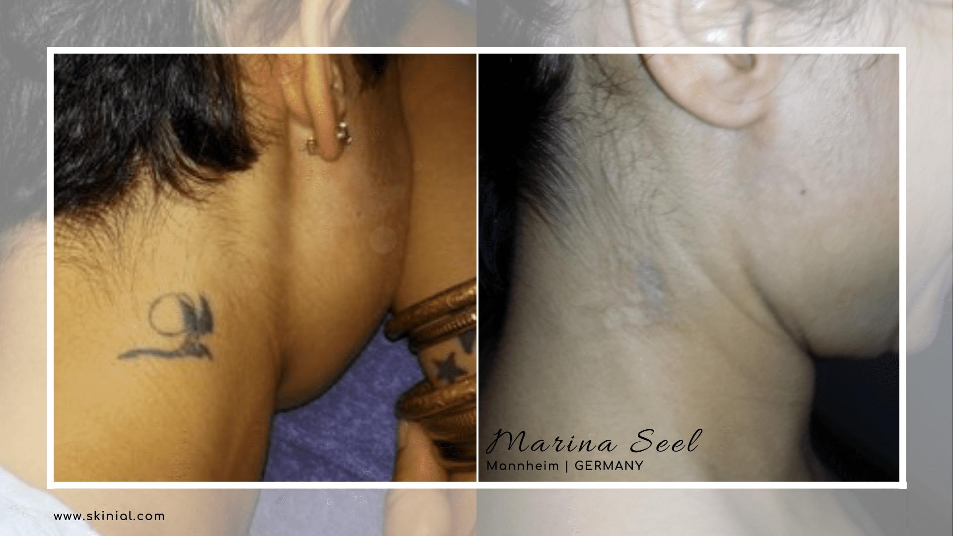 Tattooentfernung Buchstabe